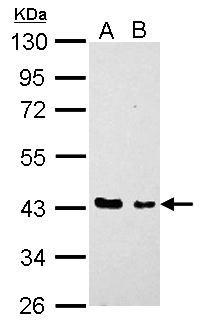 EED Antibody (PA5-22219) in Western Blot