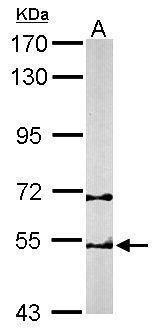 TCP-1 beta Antibody (PA5-22221) in Western Blot