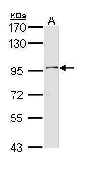 INPP5B Antibody (PA5-22231) in Western Blot