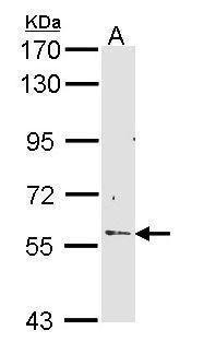 RCBTB2 Antibody (PA5-22234) in Western Blot