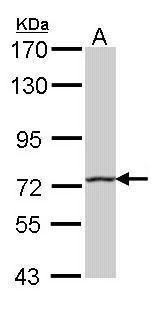 HHIP Antibody (PA5-22242) in Western Blot