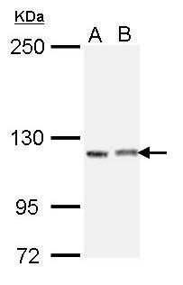 IGSF3 Isoform 2 Antibody (PA5-22244)