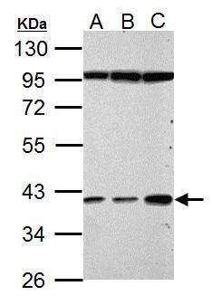 Haptoglobin Antibody (PA5-22255)