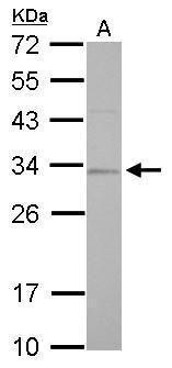 RPA2 Antibody (PA5-22256) in Western Blot