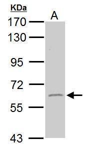 GAD65 Antibody (PA5-22260) in Western Blot