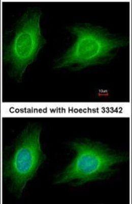ROCK1 Antibody (PA5-22262)