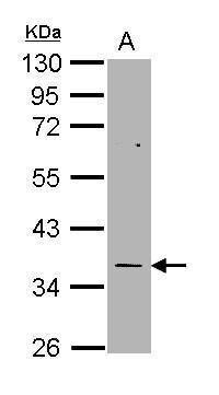 Thymidylate Synthase Antibody (PA5-22263)