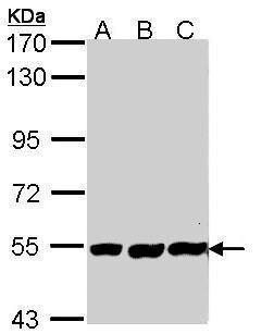 Placental Alkaline Phosphatase Antibody (PA5-22270)
