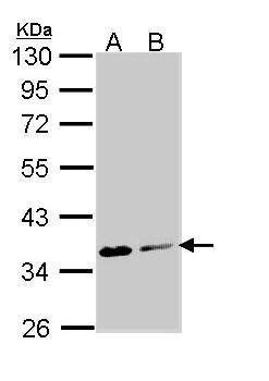 Aspartoacylase Antibody (PA5-22272) in Western Blot