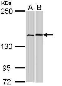FANCA Antibody (PA5-22276) in Western Blot