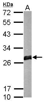 GSTM1 Antibody (PA5-22278) in Western Blot