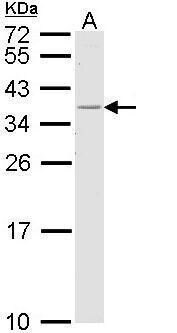 HLA-DR Antibody (PA5-22279) in Western Blot