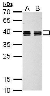 hnRNP C Antibody (PA5-22280) in Western Blot