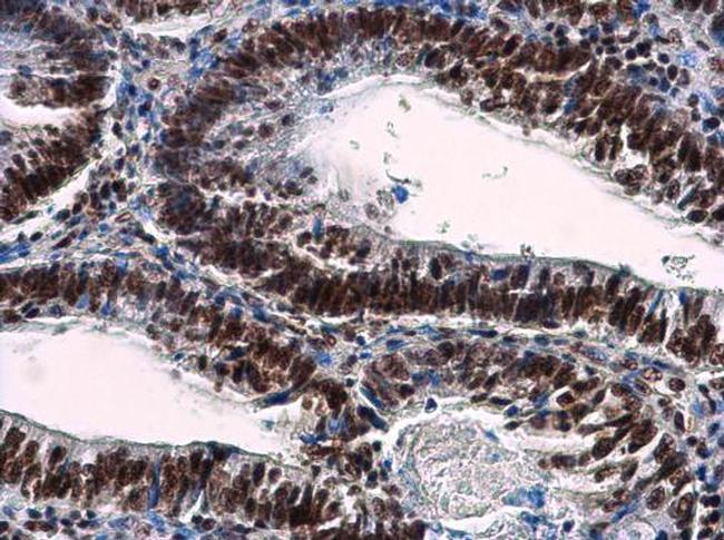 NuMA Antibody (PA5-22285) in Immunohistochemistry (Paraffin)