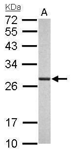 PSMA6 Antibody (PA5-22288) in Western Blot