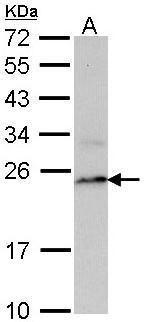 PSMB8 Antibody (PA5-22290) in Western Blot