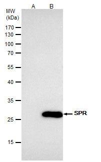 SPR Antibody (PA5-22293) in Immunoprecipitation