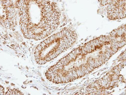 eIF2b beta Antibody (PA5-22295) in Immunohistochemistry (Paraffin)