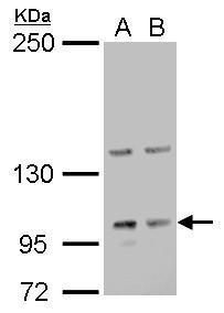 Laminin gamma-2 Antibody (PA5-22308) in Western Blot
