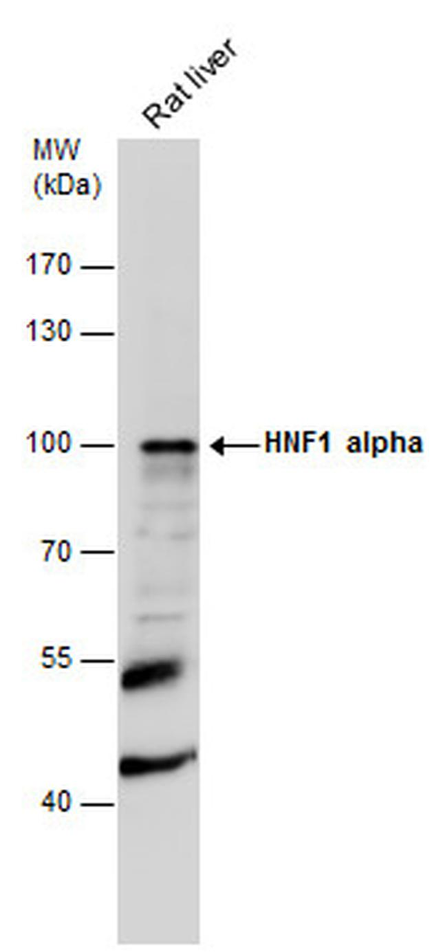 HNF1A Antibody (PA5-22310) in Western Blot