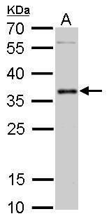 PIM2 Antibody (PA5-22315) in Western Blot