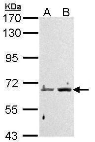 PADI4 Antibody (PA5-22317) in Western Blot