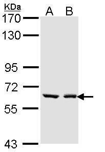 UGT1A6 Antibody (PA5-22319) in Western Blot