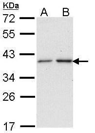 NAT2 Antibody (PA5-22324) in Western Blot