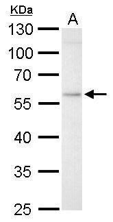 GBA Antibody (PA5-22326) in Western Blot