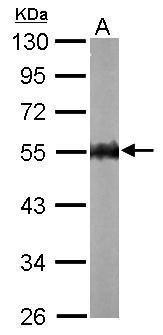 AMPK gamma-2 Antibody (PA5-22331) in Western Blot
