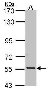 ALPPL2 Antibody (PA5-22336) in Western Blot