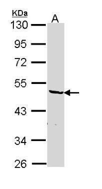 hnRNP F Antibody (PA5-22341) in Western Blot