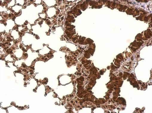PCBP2 Antibody (PA5-22350) in Immunohistochemistry (Paraffin)