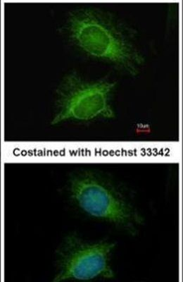 PGM3 Antibody (PA5-22353) in Immunofluorescence
