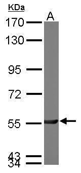 PGM3 Antibody (PA5-22353) in Western Blot