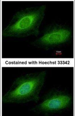 TSSC1 Antibody (PA5-22360)