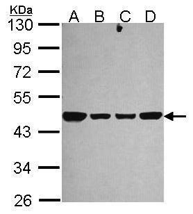 NDUFS2 Antibody (PA5-22364) in Western Blot