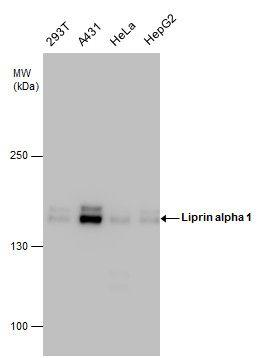 PPFIA1 Antibody (PA5-22375) in Western Blot