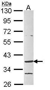 GPR4 Antibody (PA5-22391)