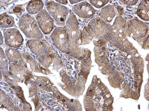 H-Ras Antibody (PA5-22392) in Immunohistochemistry (Paraffin)