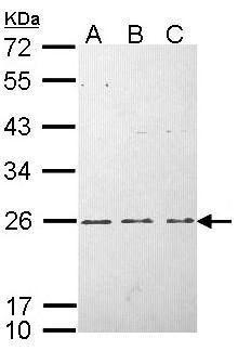 H-Ras Antibody (PA5-22392) in Western Blot