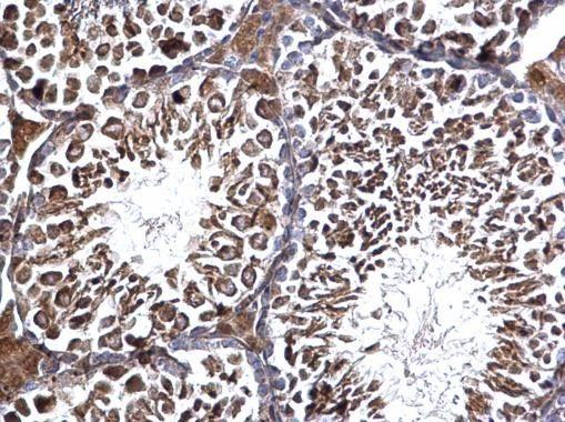 EDC3 Antibody (PA5-22395) in Immunohistochemistry (Paraffin)