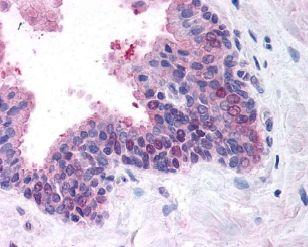 FANCD2 Antibody (PA5-22704) in Immunohistochemistry