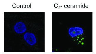 LC3B Antibody (PA5-22936) in Immunofluorescence