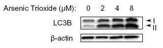 LC3B Antibody (PA5-22936) in Western Blot