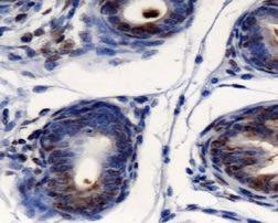 AGR2 Antibody (PA5-22963) in Immunohistochemistry