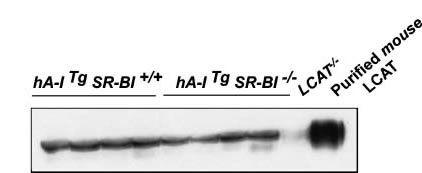 LCAT Antibody (PA5-22965)