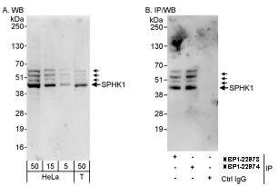 SPHK1 Antibody (PA5-22994) in Western Blot