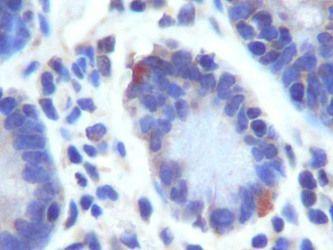 LGR5 Antibody (PA5-23000) in Immunohistochemistry