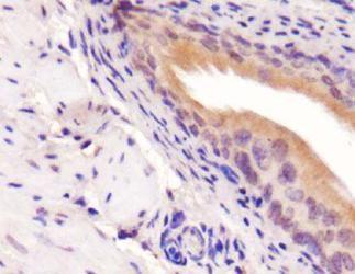 PICK1 Antibody (PA5-23015)
